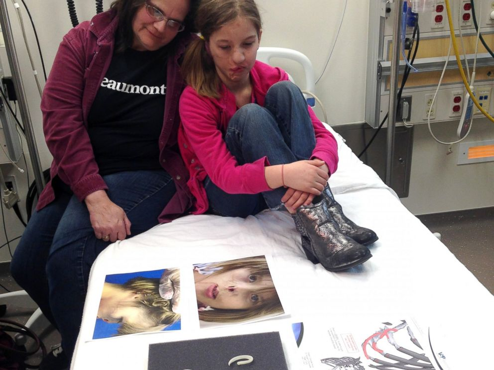 PHOTO: Charlotte Ponce with her mother before surgery to create a new ear at Beaumont Children's Hospital in Michigan.