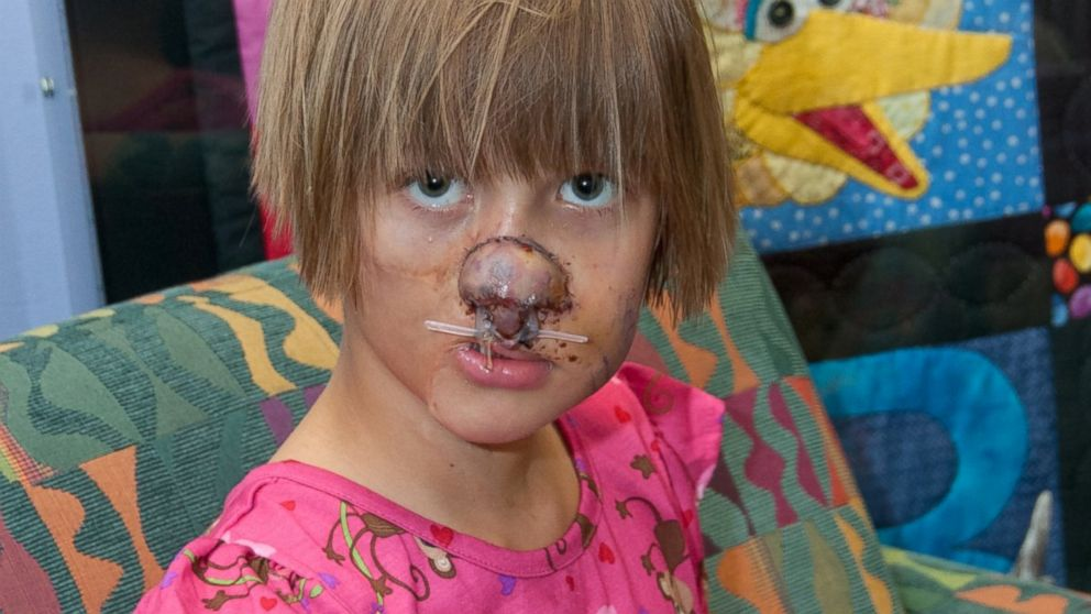PHOTO: Charlotte Ponce, then 9, after plastic surgeons rebuilt her nose at Beaumont Children's Hospital in Michigan.