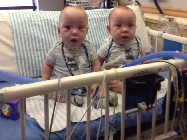 HT conjoined ezell twins 1 jtm 140415 4x3 608 Instant Index: Formerly Conjoined Twins Leave Dallas Hospital