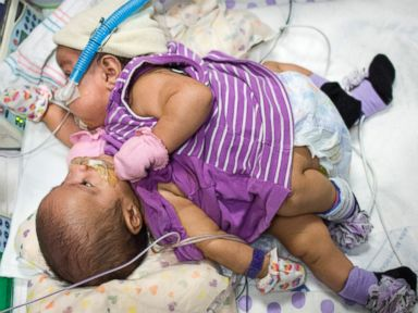 PHOTO: Elysse Mata gave birth to conjoined twins at Texas Children's Hospital in Houston, April 11, 2014.