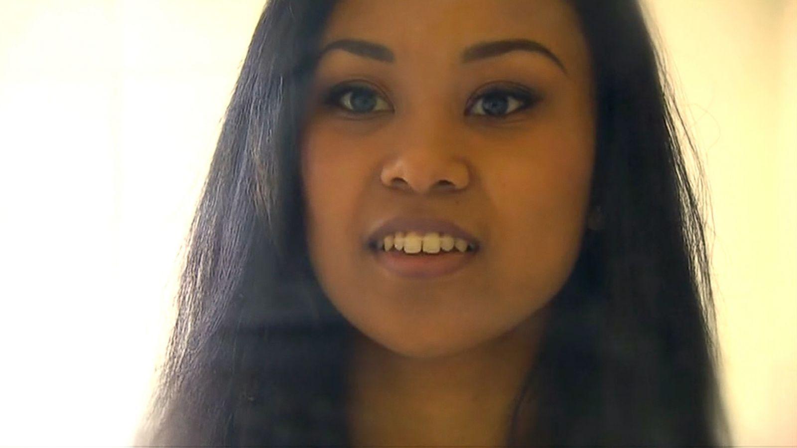 Woman uses rubber bands hair elastics as diy braces abc news solutioingenieria Choice Image
