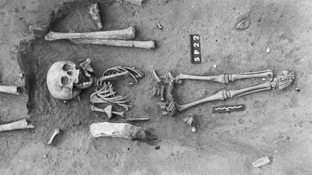 http://a.abcnews.com/images/Health/HT_down_syndrome_fossil_jef_140710_16x9_608.jpg