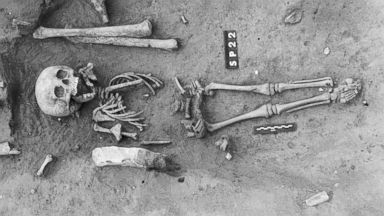 PHOTO: The ancient skeleton of a child has revealed how past civilizations viewed genetic disorders.