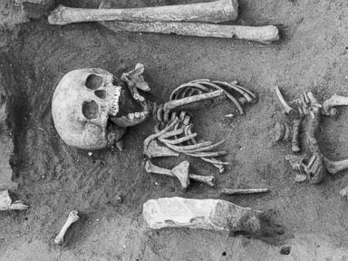 Oldest Case of Down Syndrome Found in 1,500-Year-Old Skeleton