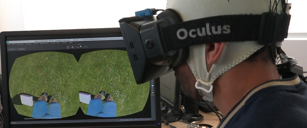 PHOTO: Researchers at Duke University were able to return some muscle movement and sensation in paraplegic patients by after simultaneously using virtual reality and brain-controlled robotics to attempt an experimental rehab therapy.
