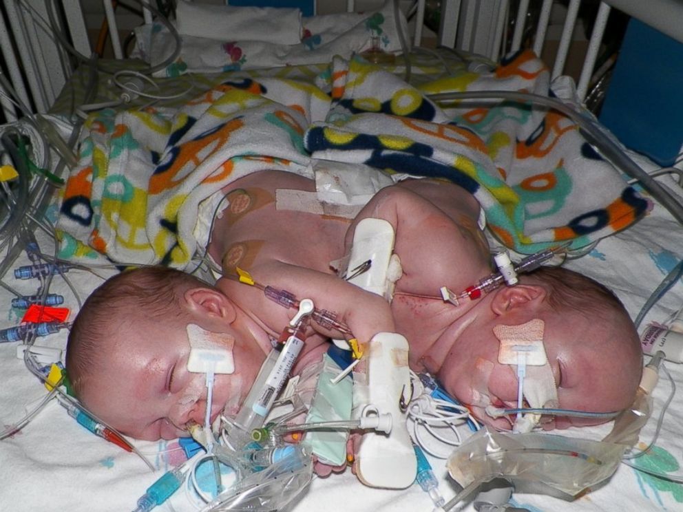 PHOTO: Conjoined twins, Emmit and Owen Ezell before separation surgery.