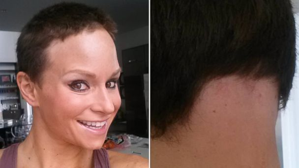 PHOTO: Georgia Van Cuylenbergs hair is shown having grown back in this recent photo, part of an on-again, off-again cycle of her Alopecia.