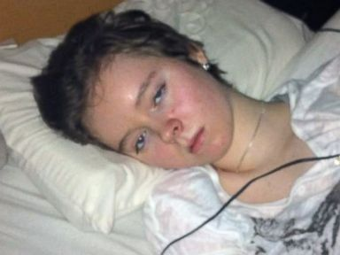 PHOTO: Jessica Taylor, 22, is confined to her bedroom with one of the most severe cases of myalgic encephalomyelitis or ME.