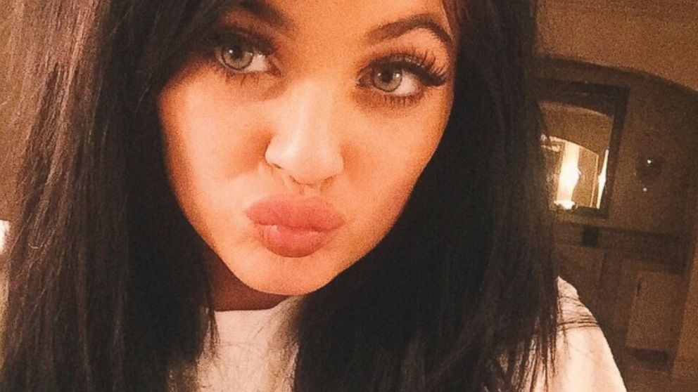 PHOTO: Kylie Jenner posted this photo on Instagram, March 21, 2015. Teens are imitating Kylie Jenners oversize pout with disastrous results and posting their failures on social media.