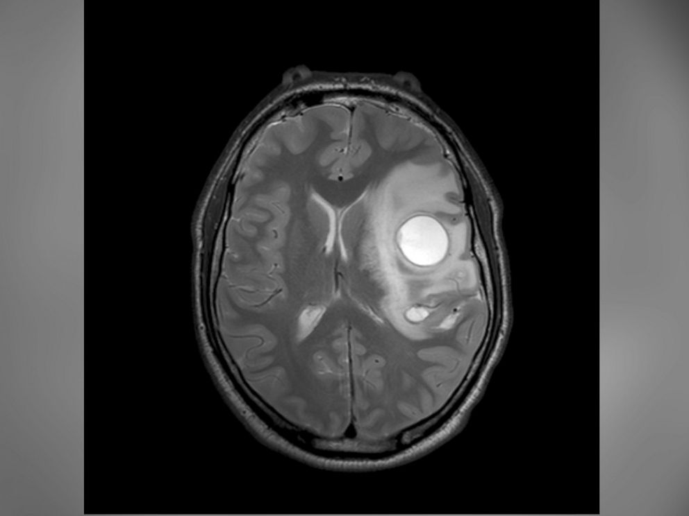 PHOTO: This MRI scan shows the effects of a tapeworm infection in the brain.
