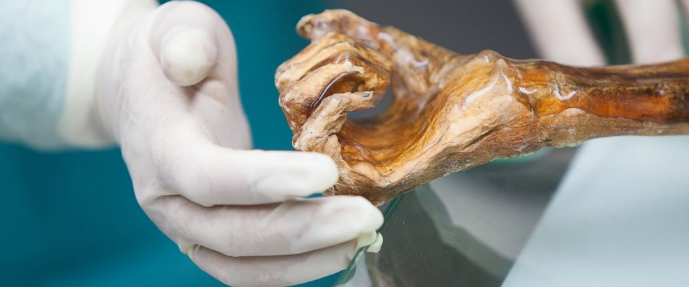 """PHOTO: A 5,300 mummy called """"Iceman"""" has shed new light on human evoultion and migration."""