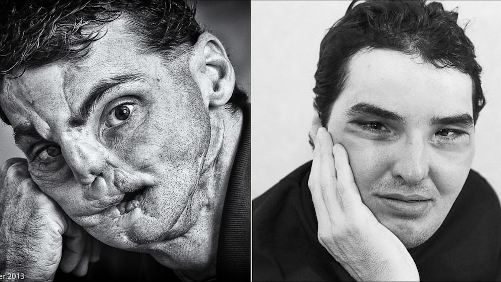 "PHOTO:  ""The Two Faces of Richard"""