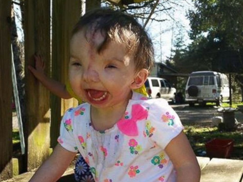PHOTO: A toddler is happy and recovering months after her face was rebuilt with the help of a 3-D printer.