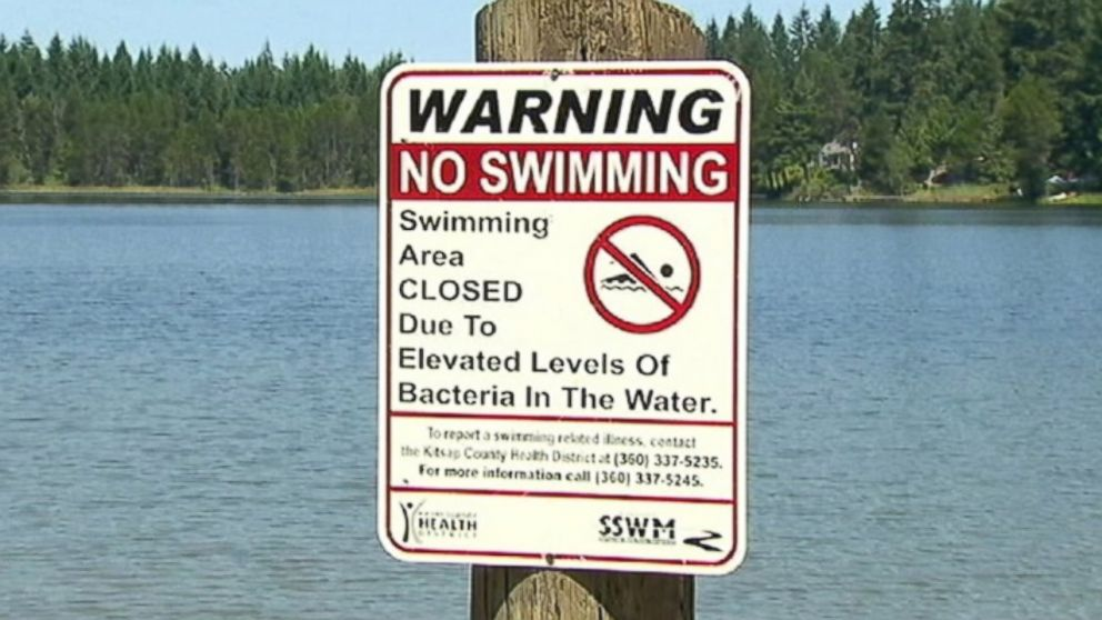 PHOTO: A mysterious stomach bug has shut down a lake in Kitsap County, Wash.