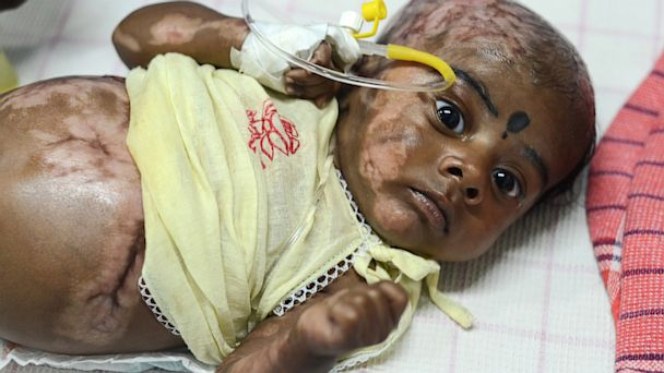 LD baby spontaneous combustion nt 130822 16x9 608 Indian Baby Released After No Signs of Spontaneous Combustion