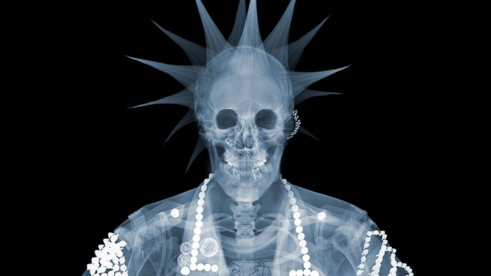 Nick veasey 39 s 39 x ray art 39 photos abc news for X ray painting