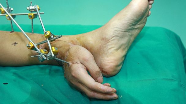 REX hand foot ml 131217 16x9 608 Chinese Doctors Attach Hand to Foot
