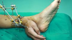 PHOTO: Chinese doctors reattached man's severed hand to his ankle to keep it alive before final surgery.