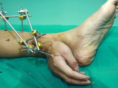PHOTO: Chinese doctors reattached mans severed hand to his ankle to keep it alive before final surgery.