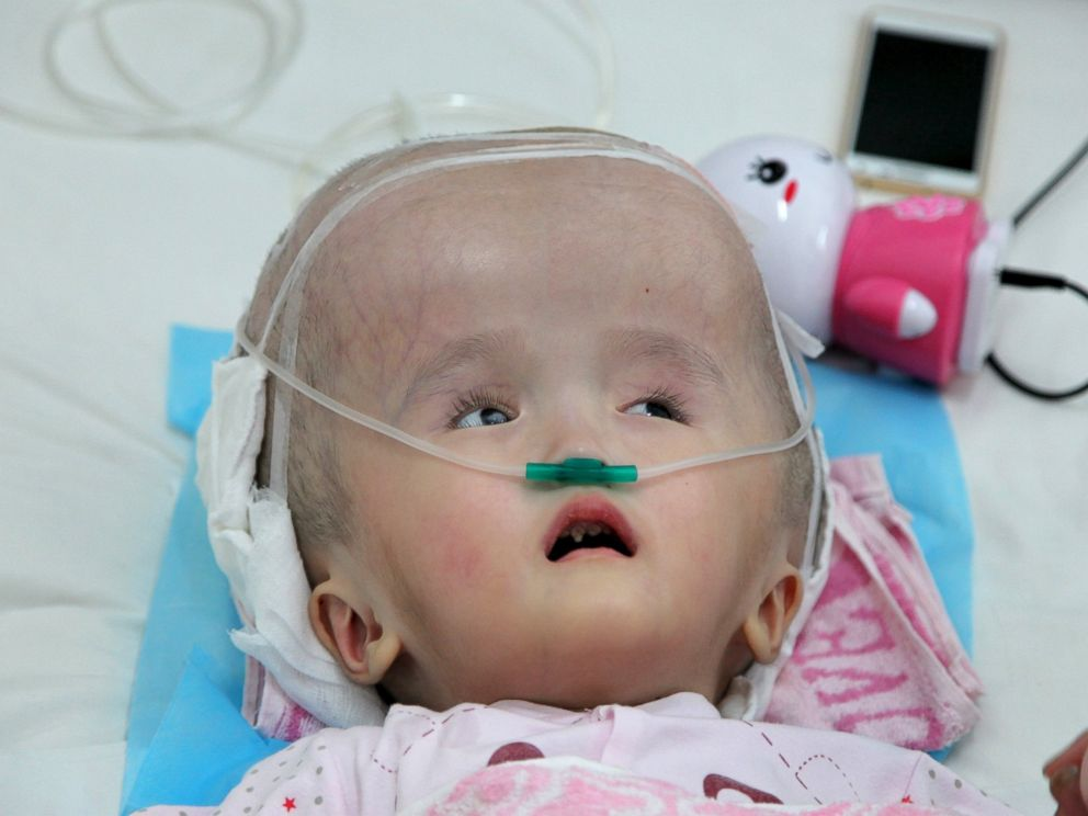 PHOTO: Three-year-old Hanhan is seen before a surgery to implant three pieces of titanium mesh to replace her skull, at a hospital in Changsha, Hunan province, China, July 14, 2015.