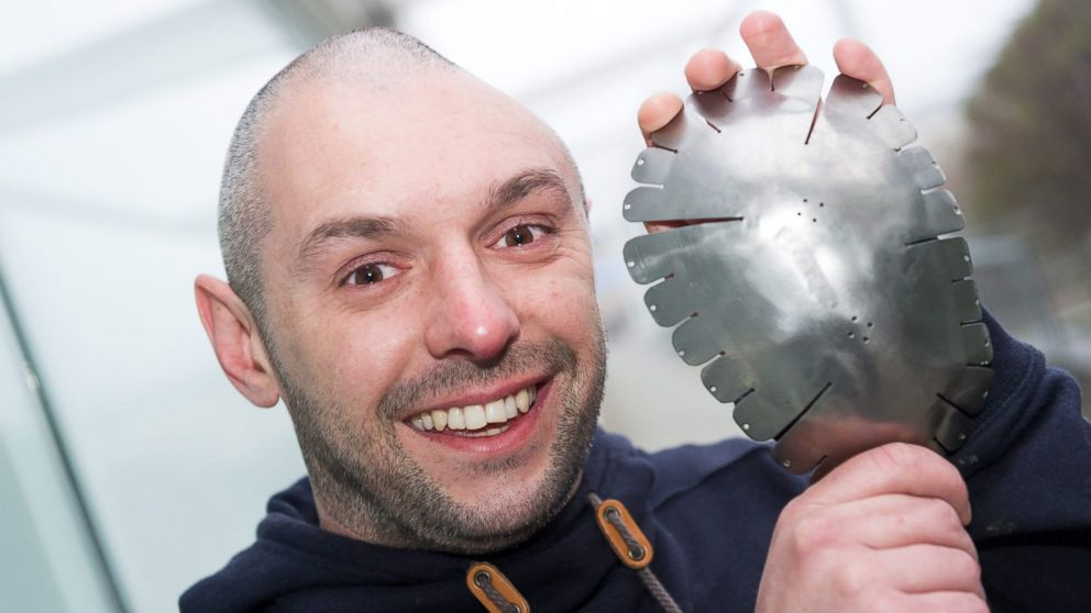 PHOTO: Lee Charie holding a metal plate before it was placed into his head in March 2014.