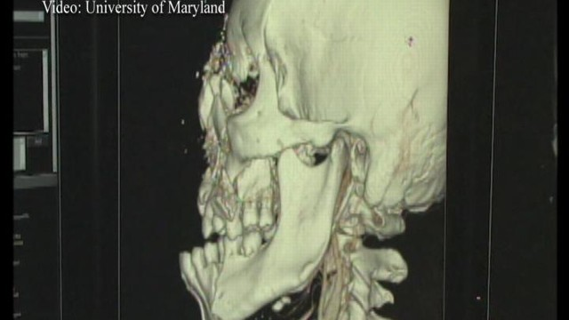 VIDEO: Surgeons at the University of Maryland succeed in the fullest face transplant ever.