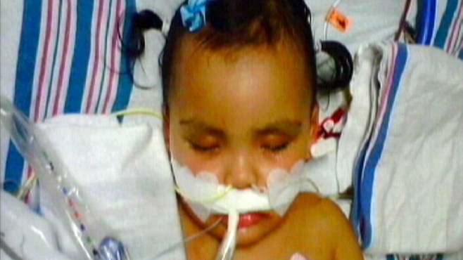 VIDEO: Malyia Jeffers lost a portion of all four limbs due to a blood infection.