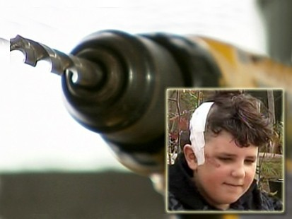 VIDEO: Doctor uses handymans drill to save a boys life.