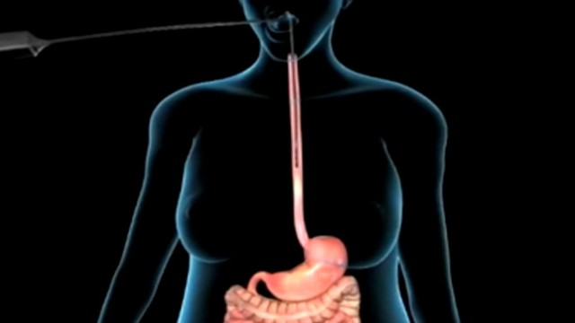 VIDEO: The AspireAssist stomach pump sucks food straight out of the user?s belly before the body can fully digest it.