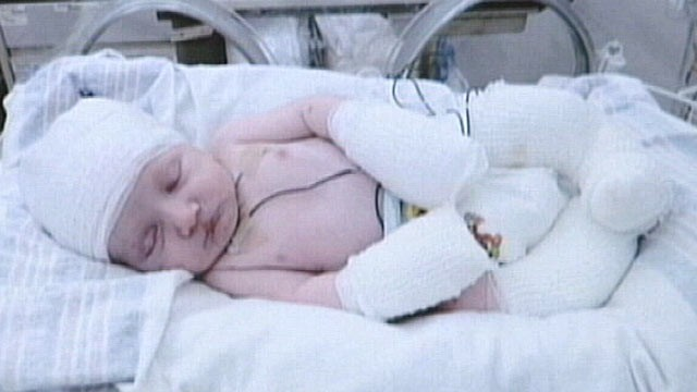 PHOTO: Brody Curtis is only one-month old and he is swaddled in bandages because much of his body has no skin.
