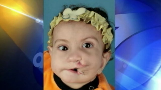 PHOTO: Rokaya Mohamed of Egypt was born with two full mouths. Last week, she underwent surgery at Children's Hospital of Los Angeles to correct the condition.