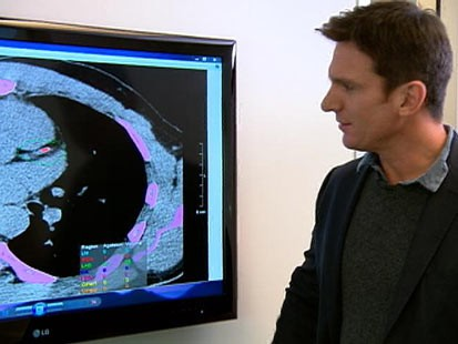 """PHOTO: Dr. David Agus, one of the worlds leading oncologists, shows """"Nightline"""" anchor Bill Weir where he has a blocked artery in his heart."""