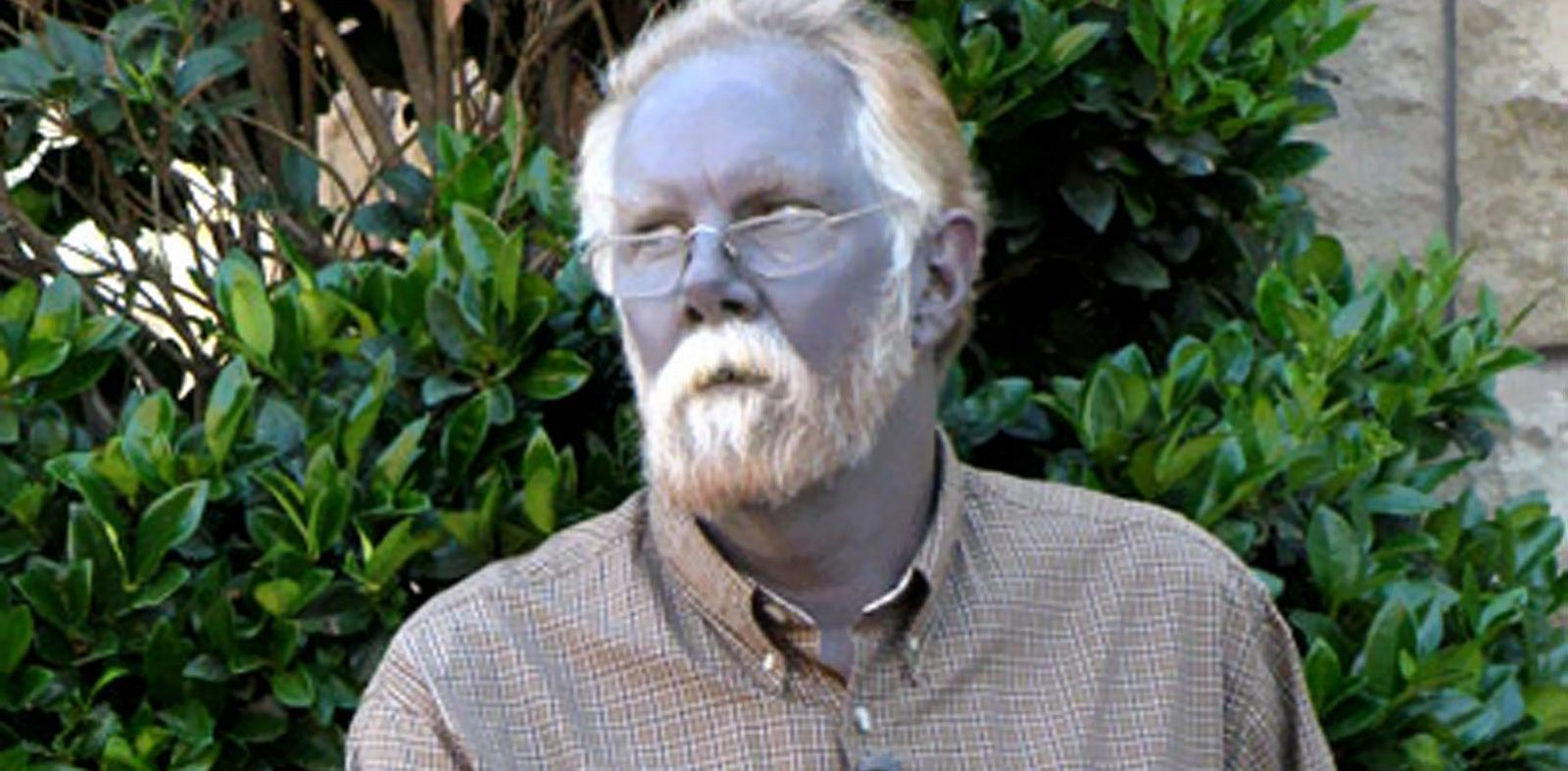 PHOTO: Paul Karasons skin turned blue after he used colloidal silver to ease his ailments.