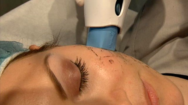 PHOTO: More young women are turning to preventive Botox injections and costly thermage treatments to prevent wrinkles before their happen.