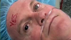 Video: Surgery corrects mans iris color.