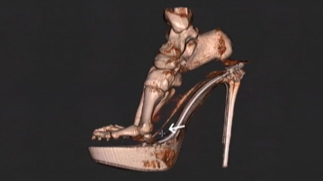 VIDEO: Specialists at England?s Royal National Orthopaedic Hospital use new scanner to view the foot and ankle.