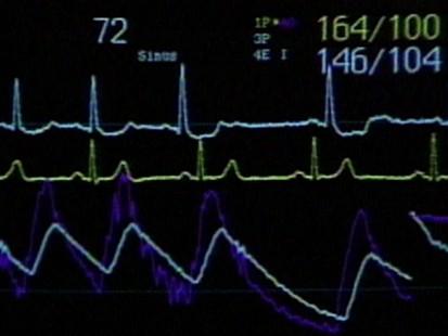 VIDEO: Deadly heart attacks