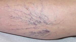 VIDEO: Get Rid of Varicose Veins