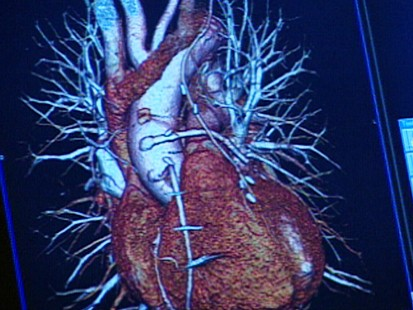 VIDEO: Heart Health