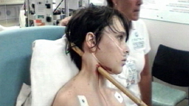 PHOTO: Dez Heal, 13, was impaled by a bamboo stick when he was playing with friends.