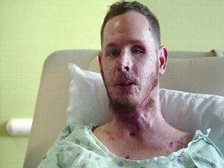 Rare Spinal Surgery Gives Marine Second Chance