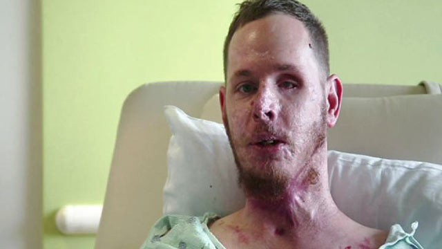 marine mark burleson had surgery to relieve chronic pain from a bomb