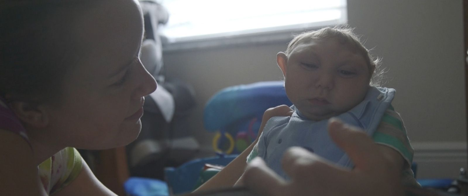"""PHOTO: Brandon and Brittany Buells son, Jaxon, shown here during an interview with """"Nightline,"""" was born with an extreme brain malformation."""