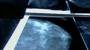 VIDEO: Bone Drugs May Fight Breast Cancer
