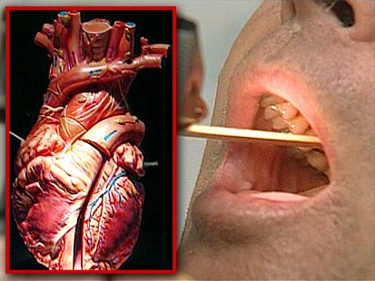VIDEO: Strep Throat and Heart Damage