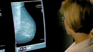 VIDEO: Study compares mammography and MRI screening for women at risk of breast cancer.