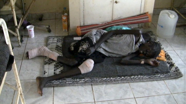 PHOTO: Eleven-year-old Kakayo recovers from wounds suffered during a recent round of violent tribal clashes in South Sudan