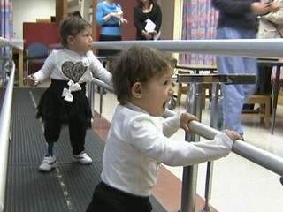 Twins from Gaza Get Chance to Walk Thanks to Prosthetics