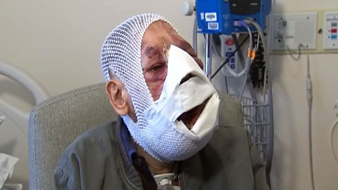 VIDEO: A man from Portugal undergoes four surgeries to remove a facial tumor.