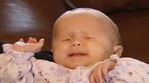 VIDEO: Brielle Garrison was born without eyes.